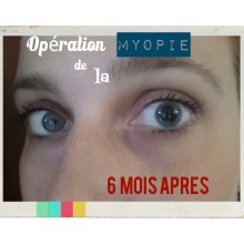 wpid-laser-myopie-6-mois-apres.jpg.jpeg